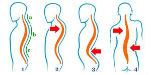 deviatiile-coloanei-vertebr